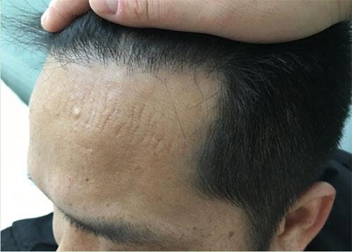 青岛大麦微针植发怎么样?看看我的效果