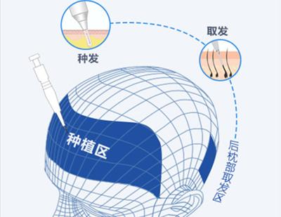 提高毛囊成活率 宁波大麦微针植发